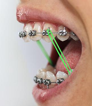 Elastic Wear Protocol Orthocare Orthodontics Charlotte Nc